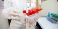 """9 وفيات و1623 إصابة جديدة بفيروس """"كورونا"""" و1209 حالات تعافٍ"""